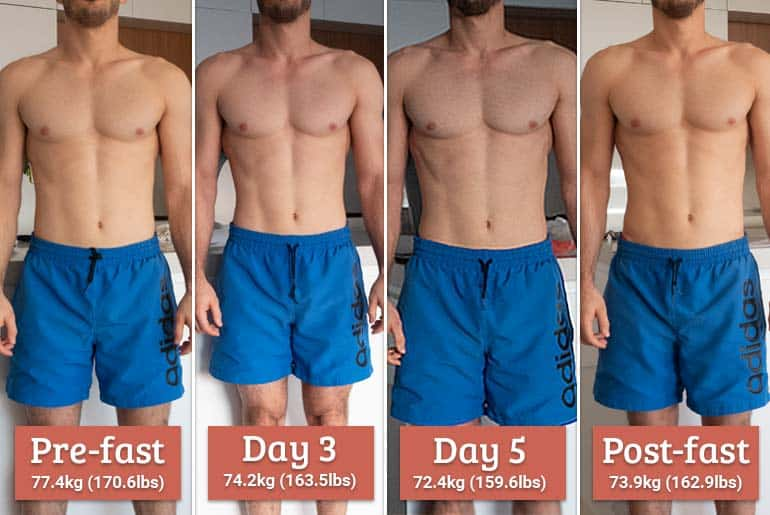 My 5 Day Water Fast Results With Exercise: Before & After